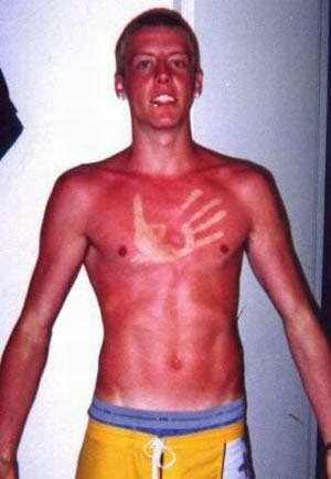 Nice Sunburn picture