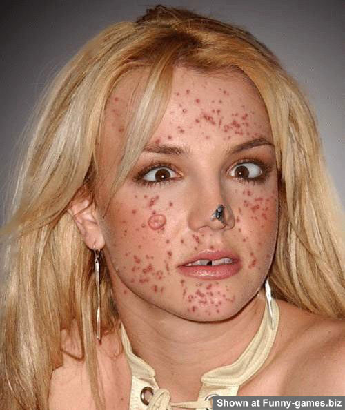 Britney Acne picture