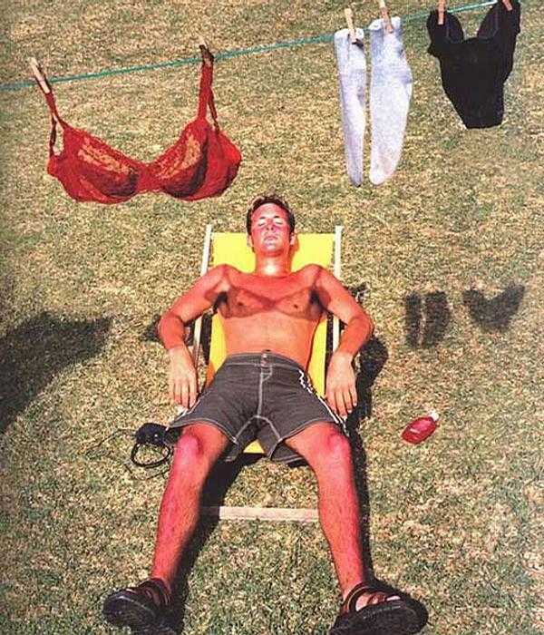 Bad SunBurn picture