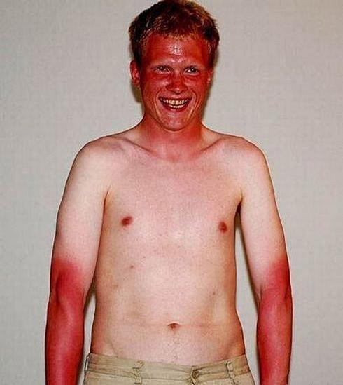 Pretty Bad Sunburn picture