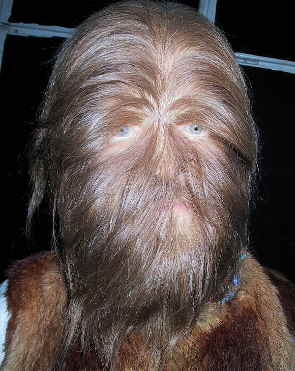 Hairy Face Pic picture
