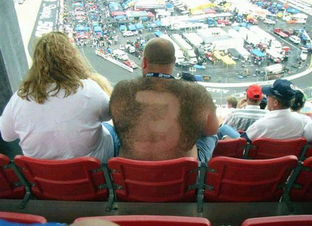 Hairy Racing Fan picture