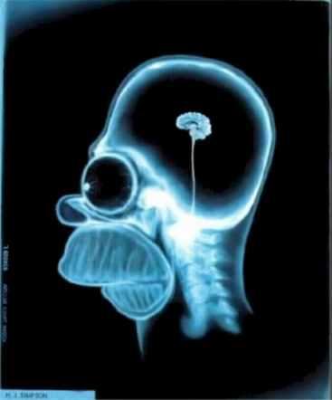 Little Brain picture